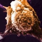 Lần đầu tiên trong lịch sử phát triển thành công vaccine chống ung thư
