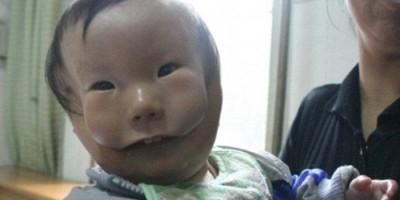 Em bé bị dị tật có hai khuôn mặt.